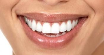 sorriso-bianco