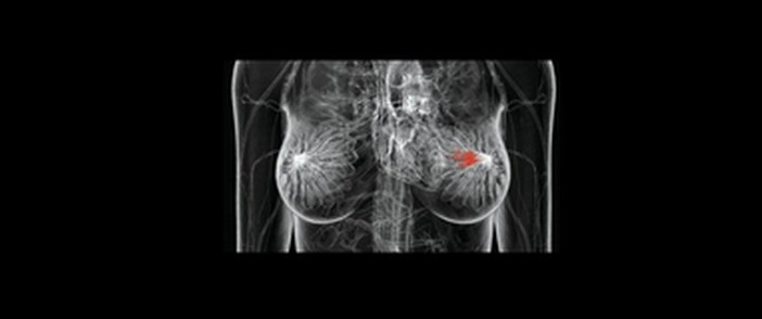 carcinoma-polipo